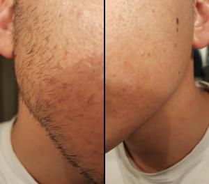 résultat fluide de rasage dermofluide